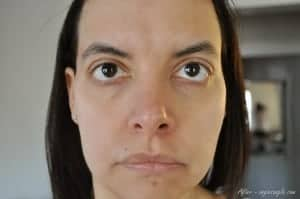 Clearer Skin after a week of using Apothederm (3)