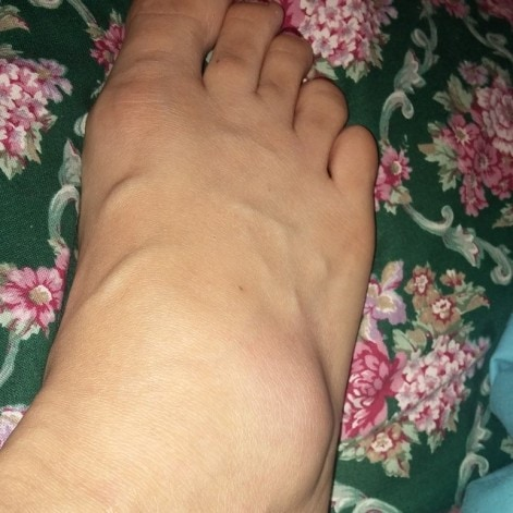 Life Update - Swollen Foot