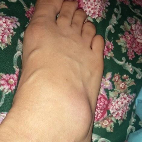 Life Update - Swollen Foot