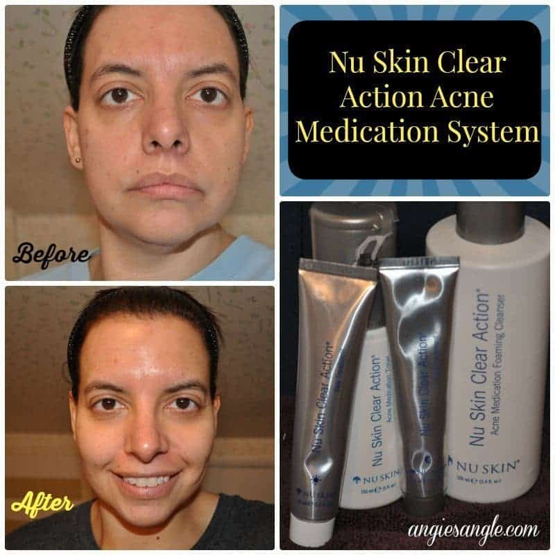 Nu Skin Clear Action Acne Medication System - Before and After
